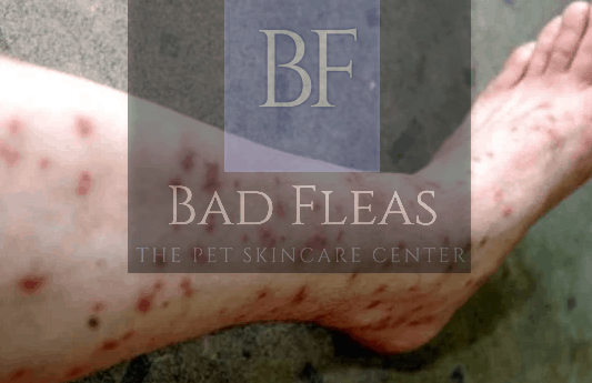 Here is What Flea Bites Look Like